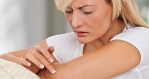 Žvynelinė: kas šią ligą sukelia, ar galima ja užsikrėsti ir kaip su ja kovoti