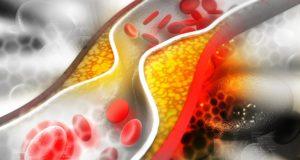 Kaip per savaitę sureguliuoti cholesterolio kiekį kraujyje