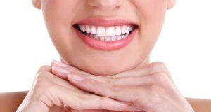 Dantų balinimas: ką būtina žinoti, kad netektų nusivilti